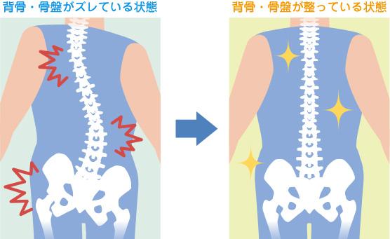 背骨・骨盤の状態